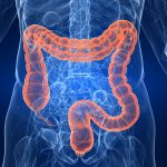 National Screening for Bowel Cancer – Idea to Reality - Monday 28TH October 2013, 7pm